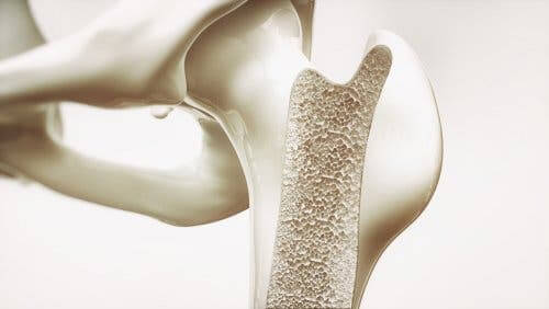 A bone with osteoporosis.