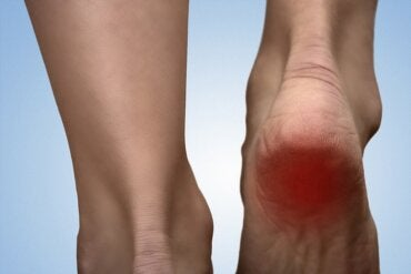 5 Remedies for Heel Spur