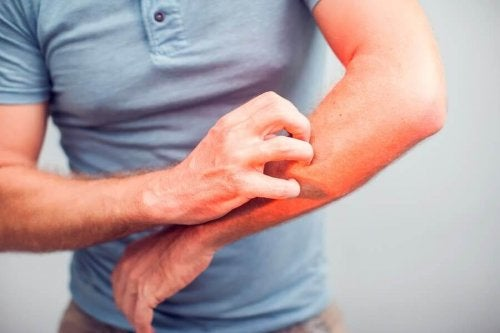 5 Natural Remedies to Relieve Itching
