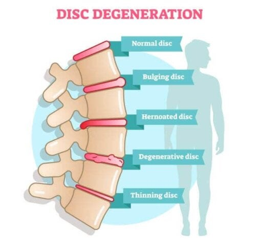 Symptoms of Degenerative Disc Disease