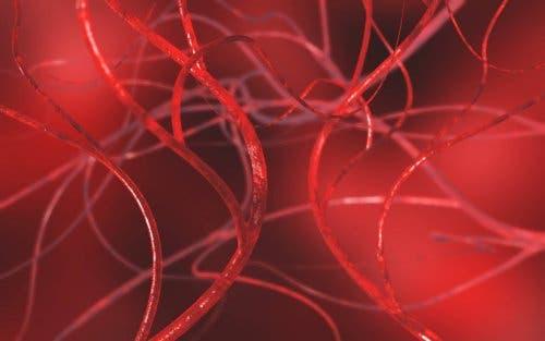 Why do varicoceles occur?