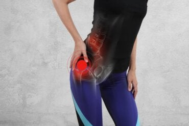What Is Gluteal Tendinopathy?
