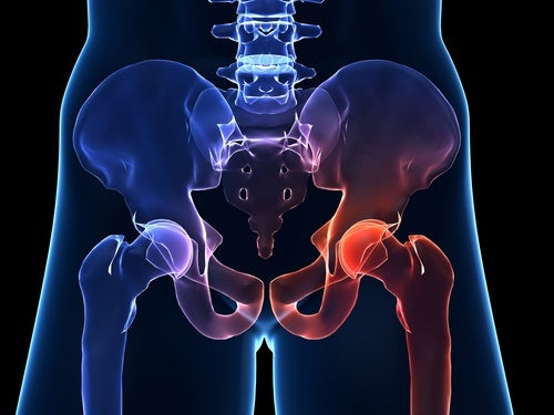 Hip Osteoarthritis - Characteristics and Symptoms