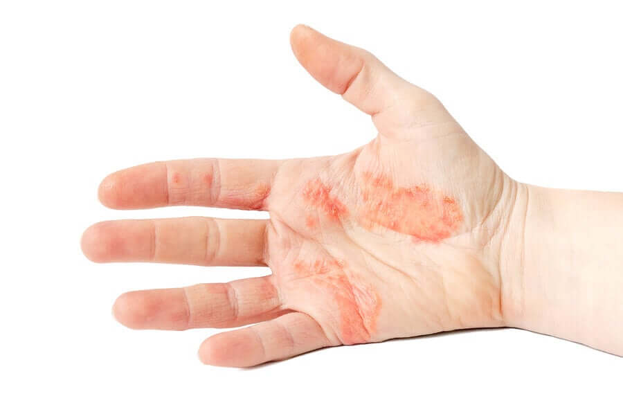 Dyshidrotic eczema of the hands.