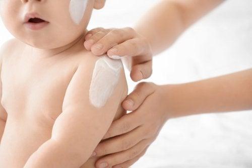 5 Types of Common Newborn Rashes
