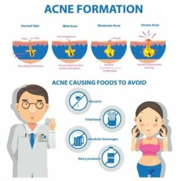 Acne Conglobata: Causes and Symptoms