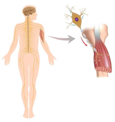 A graphic showing a closeup of the effects on muscles of neuromuscular disorders.