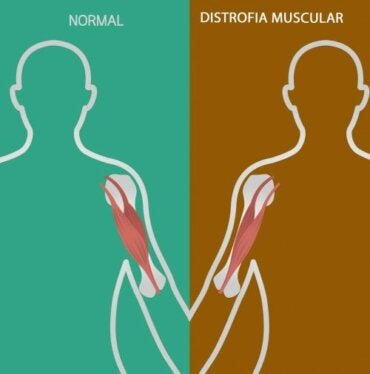 Neuromuscular Disorders: Signs and Symptoms
