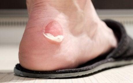 Pop blisters.