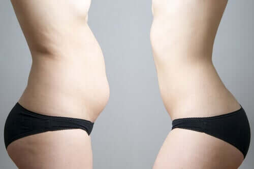 Mirror image of woman with less stomach fat from cryolipolysis.