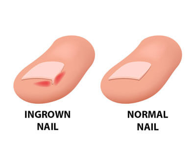 A toenail comparison.