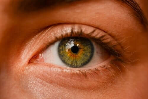 Ocular Nevi - Are Eye Freckles Dangerous?