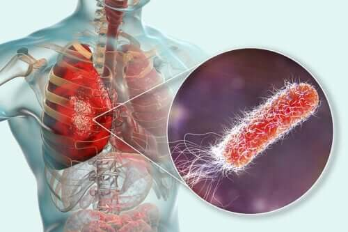 Are There Bacteria in the Lungs?