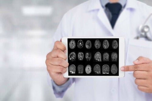 Doctor holding up tablet with images of brain scan on it.