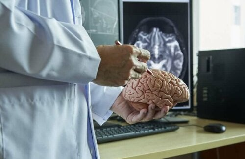 A doctor holding a plastic brain.