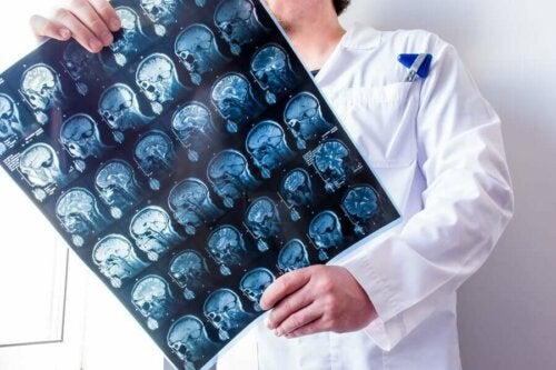 A doctor looking at brain scans.