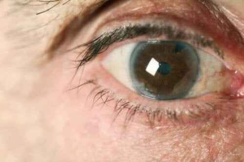 A closeup of an eye with glaucoma.