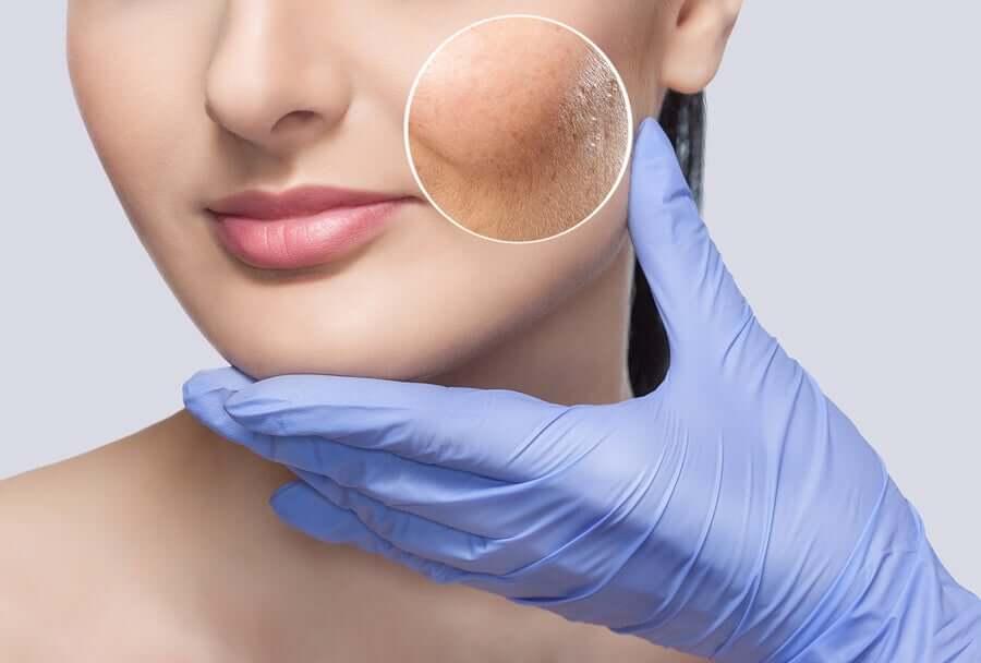 How to treat reactive skin.