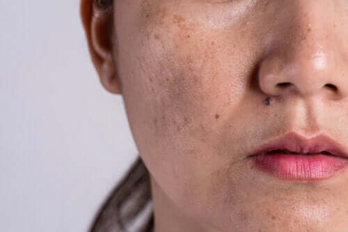 The Causes of Hyperpigmentation