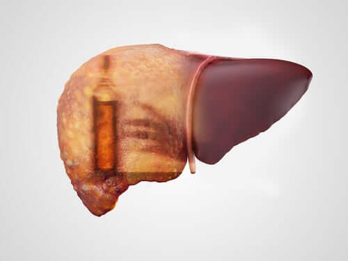 Alcoholic Hepatitis: Symptoms, Causes, and Treatments