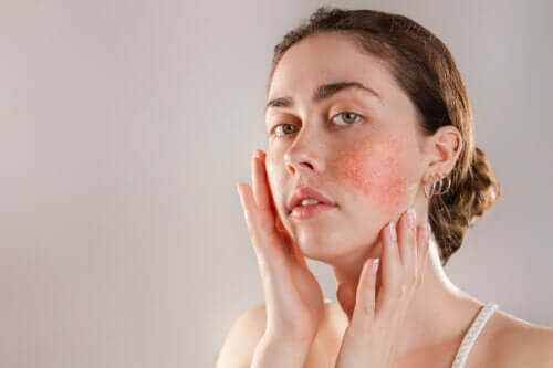 Reactive Skin: Symptoms, Causes, and Treatment