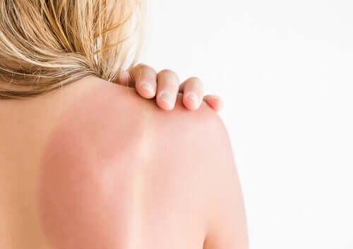 Solar Erythema: Recommendations and Care