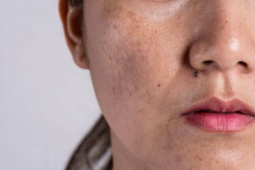 Woman with melasma on face, skin change due to pregnancy.