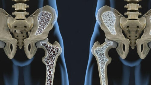 A bone density comparison.