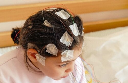 A child with electrodes in their head.