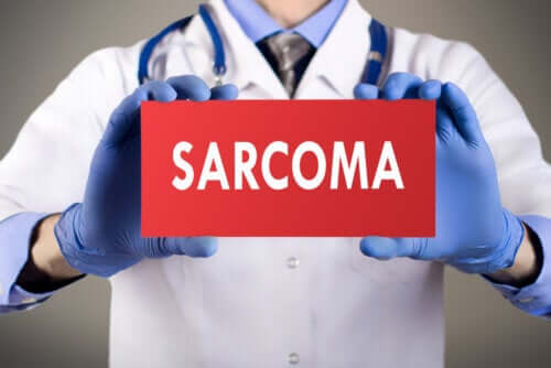 Types of Sarcoma and Its Characteristics