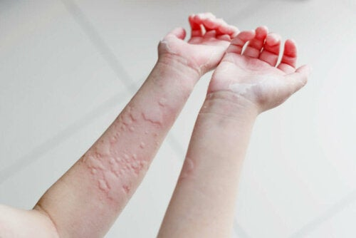 A person after scratching a rash.