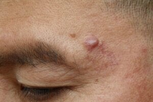 Causes and Possible Treatments for Epidermoid Cysts