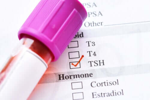 The Causes of Low Thyroid Stimulating Hormone