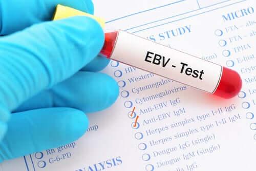 An EBV test.