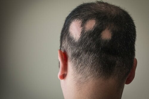 A middle-aged man with alopecia areata, one of the most common types of alopecia.