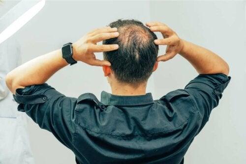A man with alopecia grabbing his head.