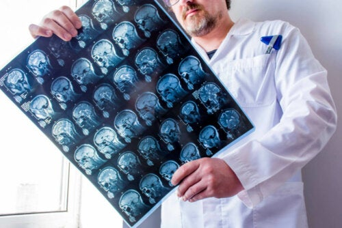 CAT scans serve to identify the different types of epilepsy.