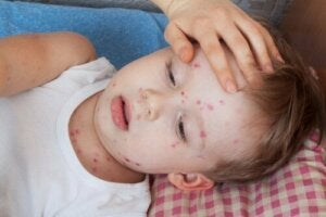 How to Treat Hives in Children