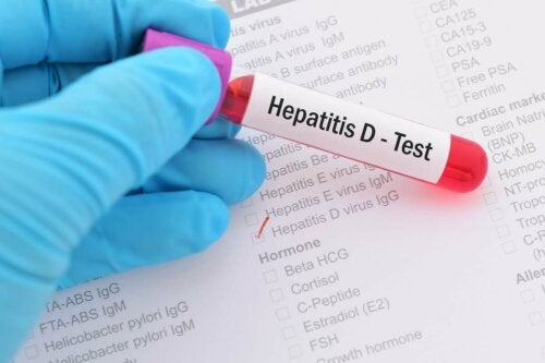 Hepatitis D test.