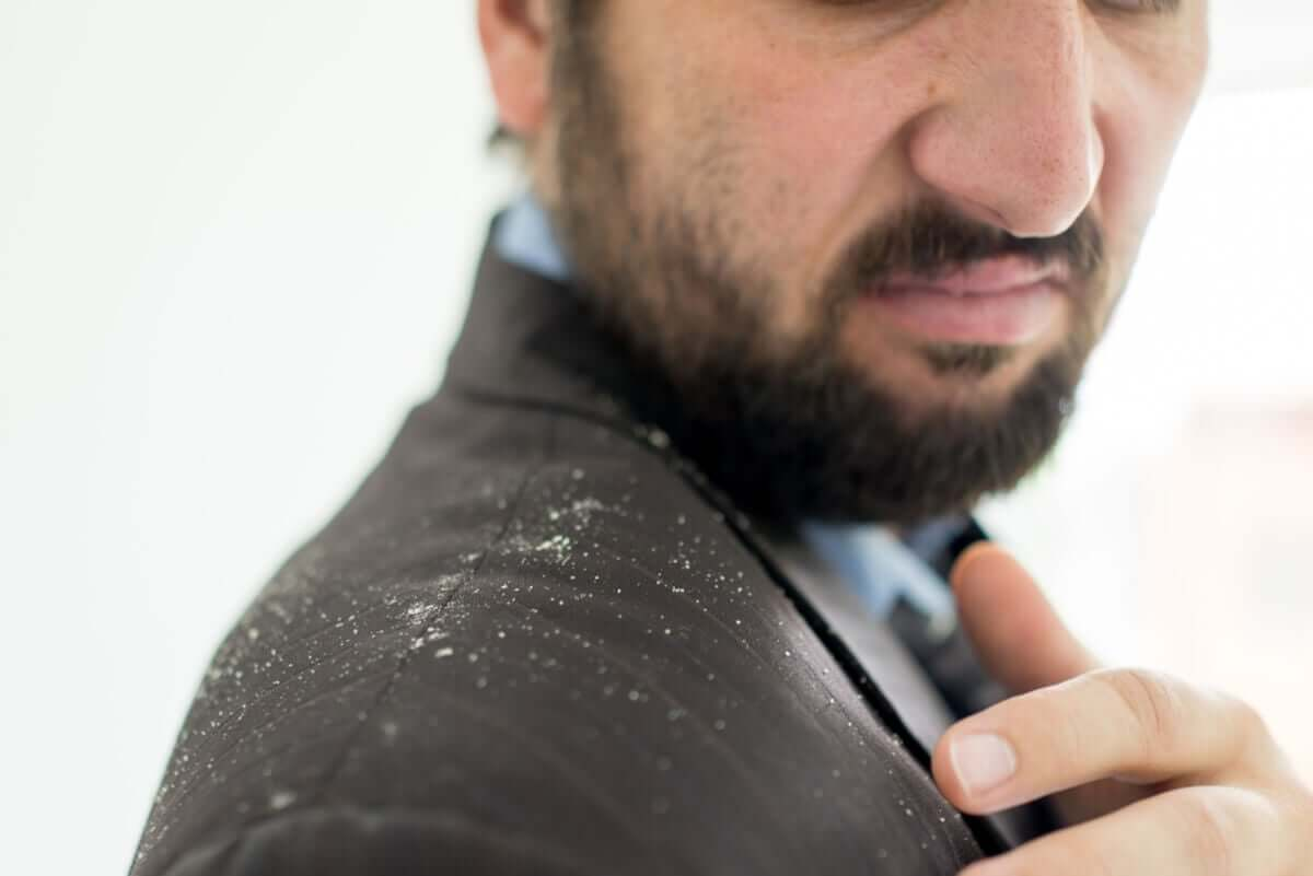 A man with dandruff.