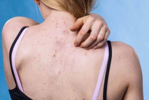 10 Causes and Types of Skin Rashes