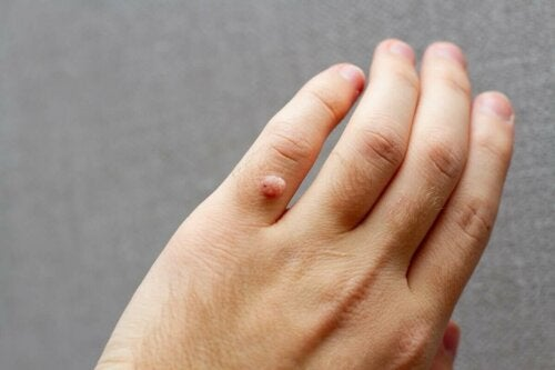A wart on a person's finger.