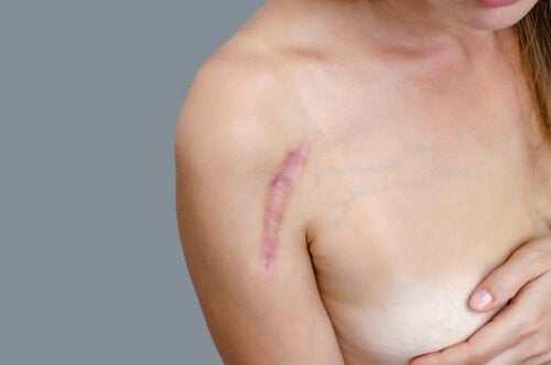 A woman with a scar on her shoulder.