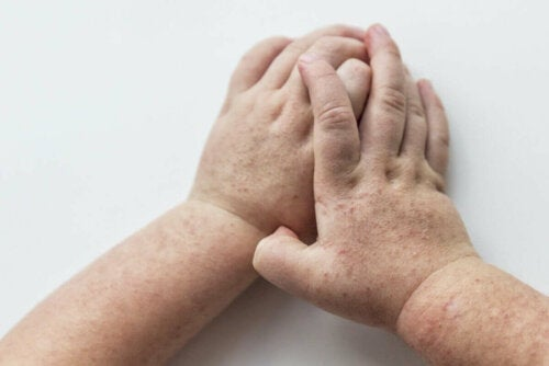 A pair of hands with a rash.