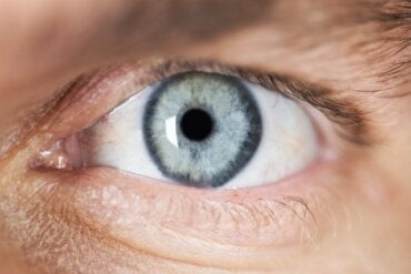 Description and Causes of Miosis (Pinpoint Pupils)
