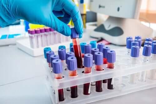 Low blood neutrophils.