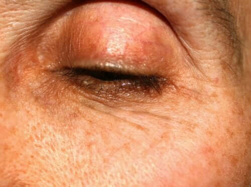 Colored Marks on Eyelids: Why Do They Appear?