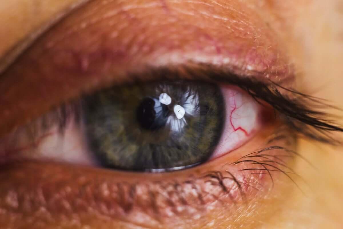 An irritated eye.
