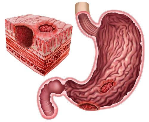 Peptic Ulcers and Helicobacter Pylori