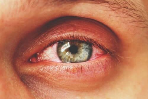 The symptoms of uveitis.